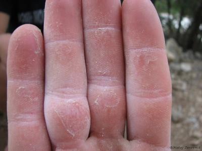Prsti po tri dnevnem plezanju