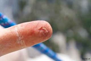 Pohabljen prst